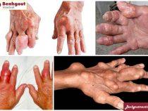 Nguyên nhân bị bệnh gout ở người già