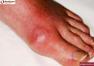 Bệnh gout và cách phòng tránh bệnh gout an toàn hiệu quả nhất