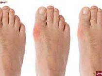 Phát hiện nhanh các triệu chứng của bệnh gout