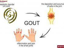 Nguyên nhân và cách điều trị bệnh gout