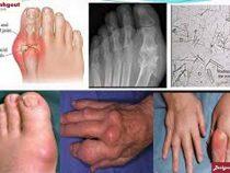 Tác hại bệnh gout là gì?