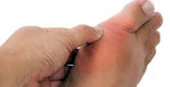 Top 11 nguyên nhân gây bệnh gout