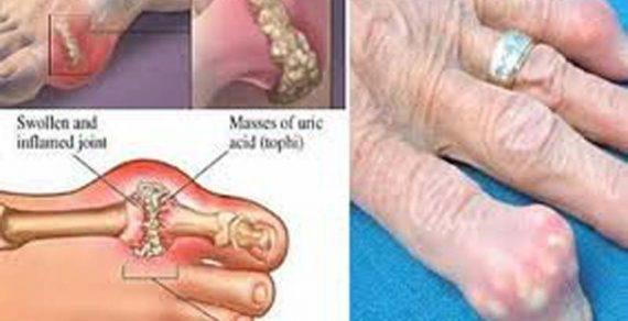 Các biểu hiện bệnh gout phổ biến nhất