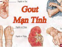Hình ảnh bệnh gout mãn tính