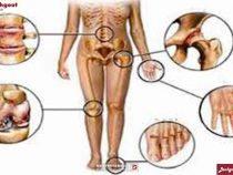 Các triệu chứng bệnh giả gout