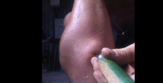 Không nên tự ý hút dịch acid uric khi bị gout