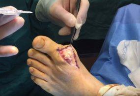 Phẫu thuật cắt bỏ hạt tophi kết tủa tại ngón chân cái