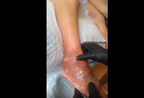 Phẫu thuật loại bỏ hạt tophi tại mu bàn chân
