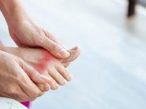 4 sai lầm chết người trong điều trị bệnh gút dễ mắc phải